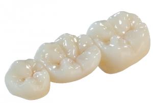 Керамика на зубы