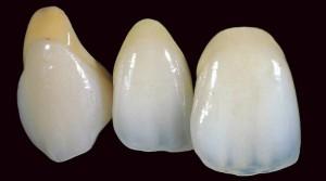 Еще вопросы о керамических зубах