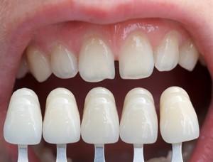 Протезирование зубов без обточки. Преимущества методики