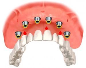 Несъемные зубные протезы в Сумах