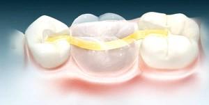 Какие основные этапы микропротезирования зубов?