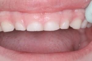 Причины стираемости зубов