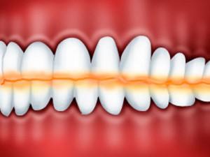 Стираемость зубов и как ее остановить?