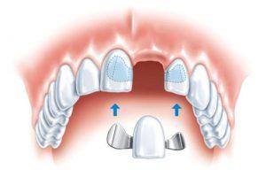 Современное микропротезирование зубов