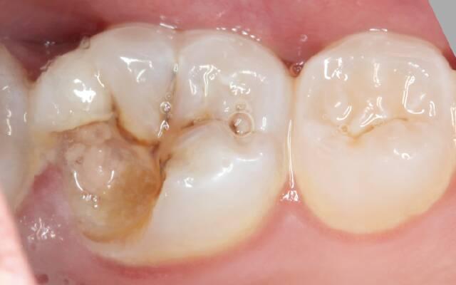 Что делать, если сломался зуб? - Протезирование в Сумах