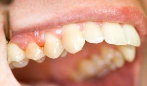 Основные признаки периодонтита зуба