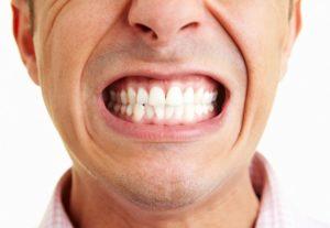 Бруксизм - скрежет зубами