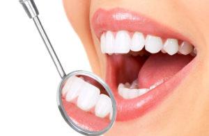 Профилактика зубов в стоматологии