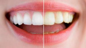 Чем лучше офисное отбеливание зубов?