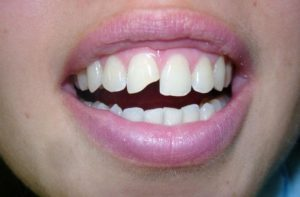 Реставрация искривленных зубов