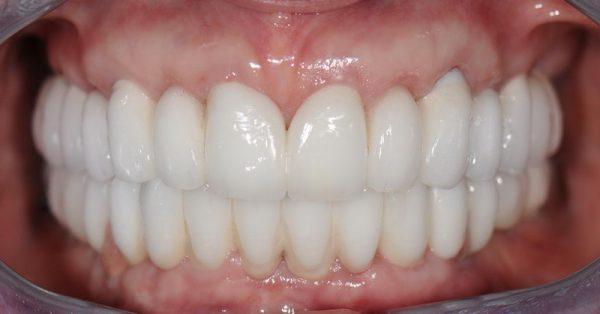 прямые композитные виниры на кривые зубы