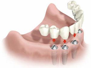 Стоимость полного протезирования зубов