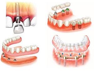 Какие виды протезирования зубов лучше?