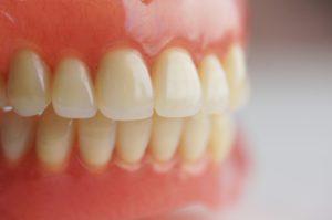 Все материалы для зубных протезов