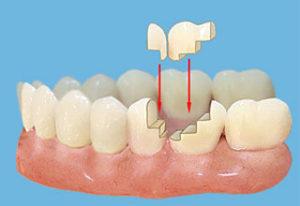 Что такое зубная вкладка?