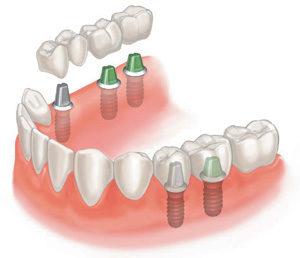 Какие зубные коронки бывают?