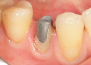 Как происходит установка зубной вкладки?