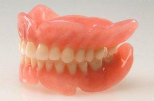 Что такое армирование съемного зубного протеза?
