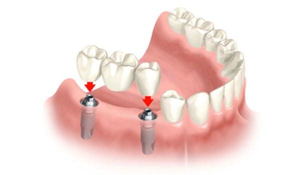 Какие лучше сделать зубы
